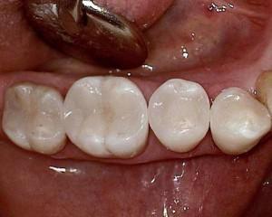 Ergebnis: Zahnfarbene Kompositfüllung
