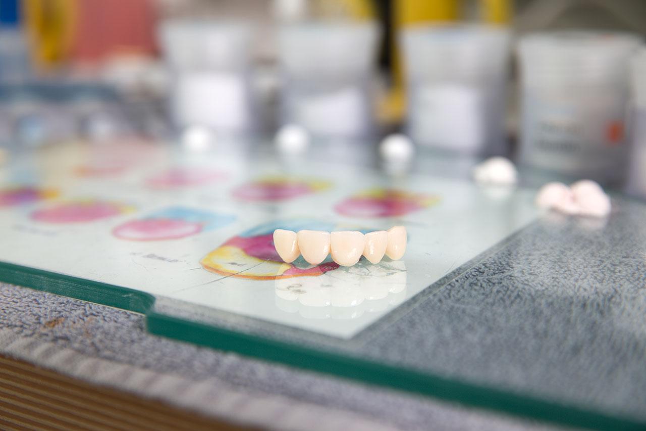Bild Labor Zahnärzte Weis Voß Rendsburg
